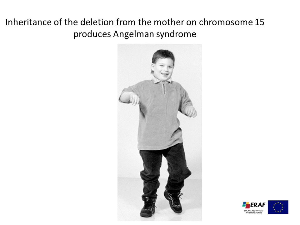 Inheritance of the deletion from the mother on chromosome 15 produces Angelman syndrome