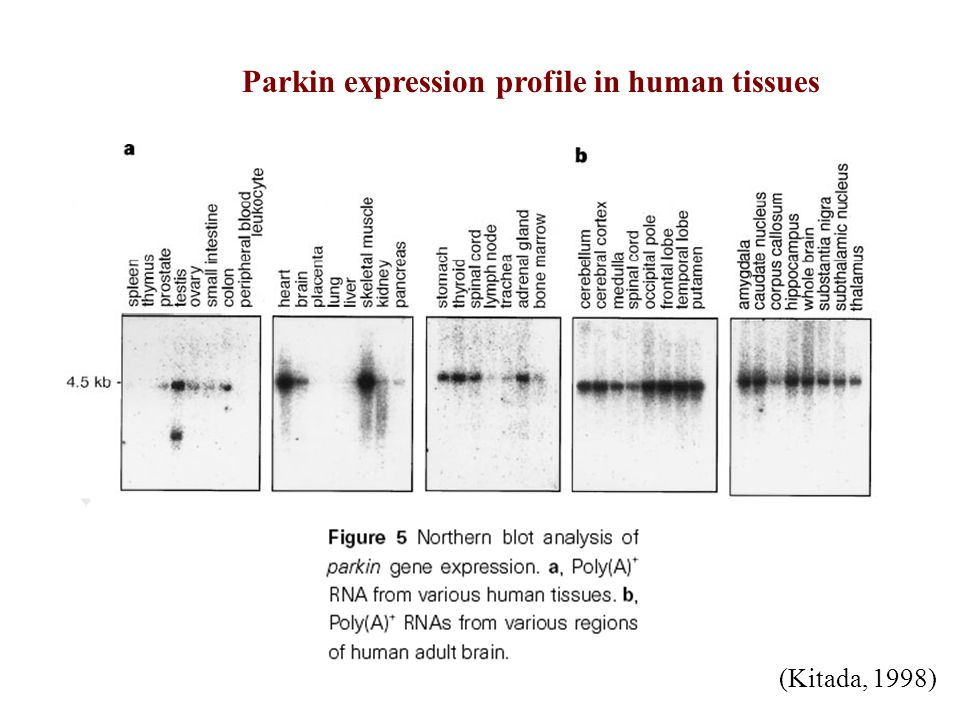 Overexpressd Parkin in PINK1 single mutant PINK1 and Parkin double mutant PINK1 single mutant Parkin rescues mitochondrial dysfunction in PINK1 mutants Clark et al., 2006