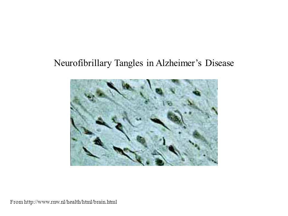 Neurofibrillary Tangles in Alzheimer's Disease From http://www.rnw.nl/health/html/brain.html