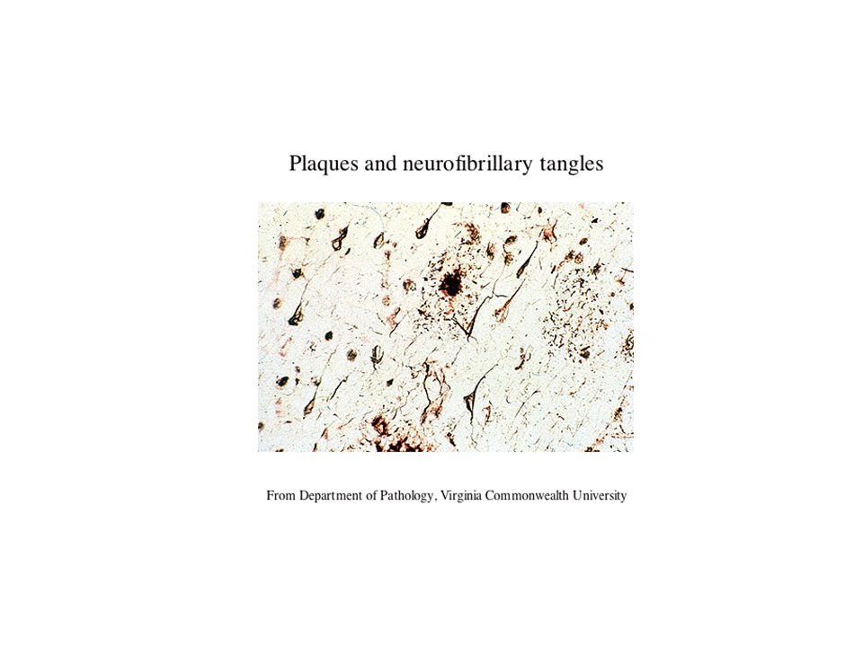 Plaques and neurofibrillary tangles From Department of Pathology, Virginia Commonwealth University
