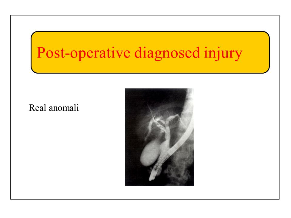 Post-operative diagnosed injury Real anomali
