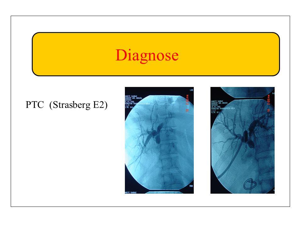Diagnose PTC (Strasberg E2)