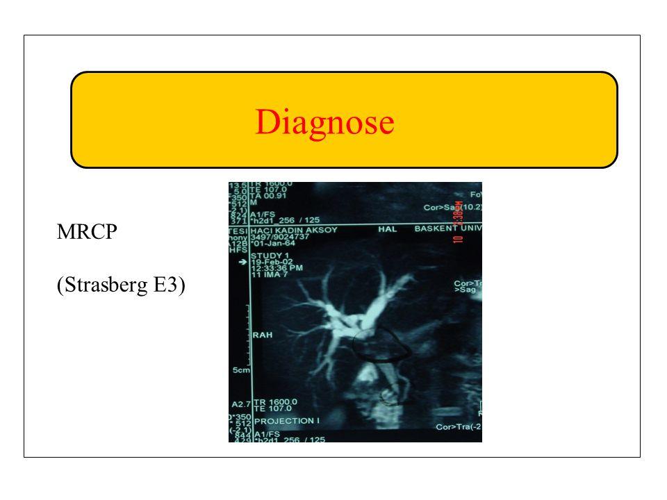 Diagnose MRCP (Strasberg E3)