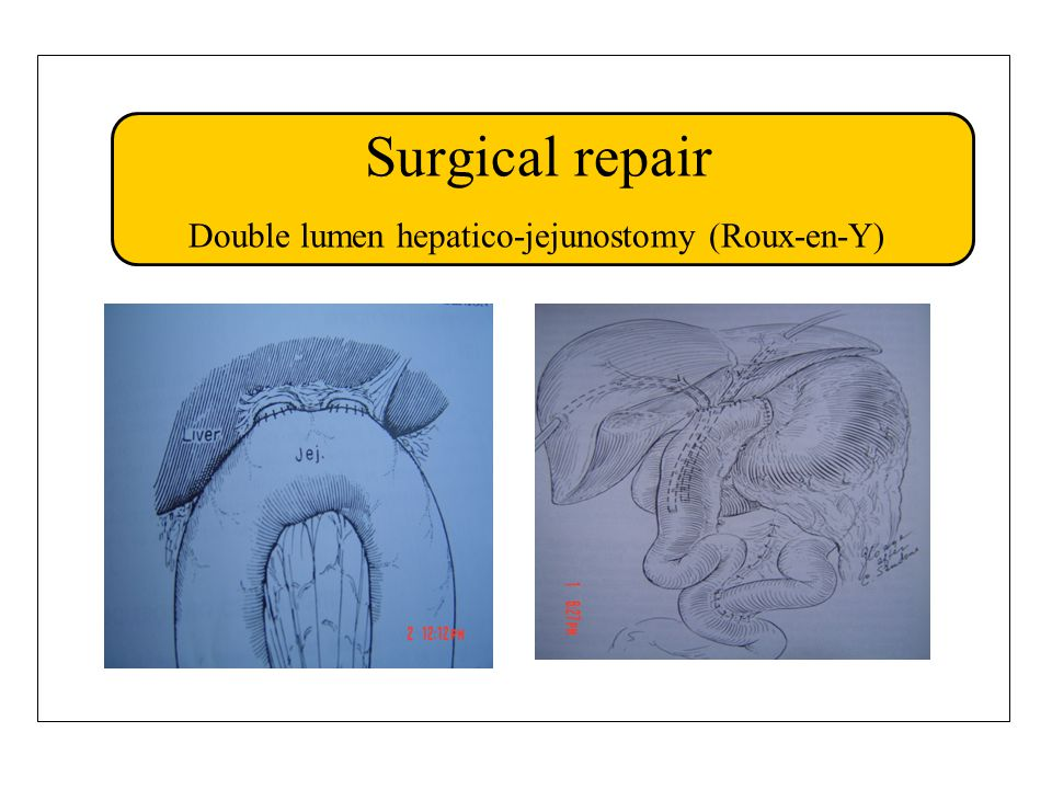 Surgical repair Double lumen hepatico-jejunostomy (Roux-en-Y)