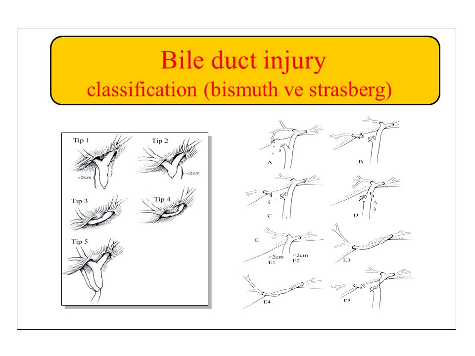 Bile duct injury classification (bismuth ve strasberg)