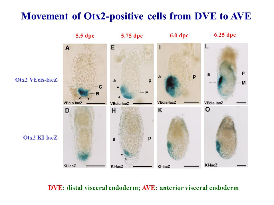 Otx2 VEcis-lacZ 5.5 dpc 5.75 dpc 6.25 dpc 6.0 dpc Otx2 KI-lacZ Movement of Otx2-positive cells from DVE to AVE DVE: distal visceral endoderm; AVE: ant