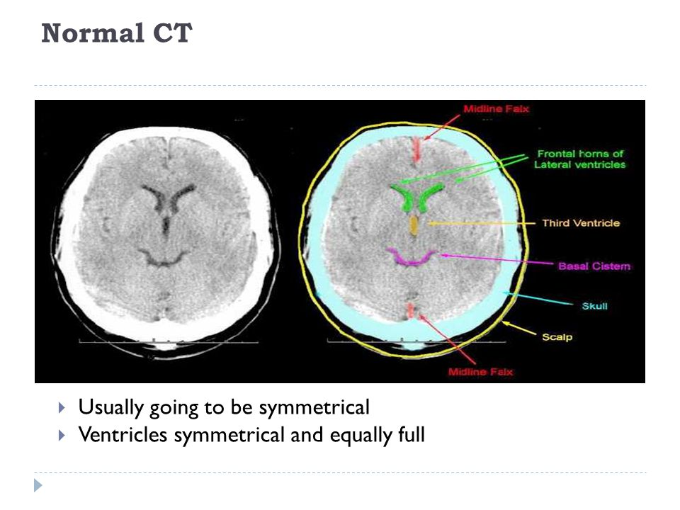 Normal CT  Usually going to be symmetrical  Ventricles symmetrical and equally full
