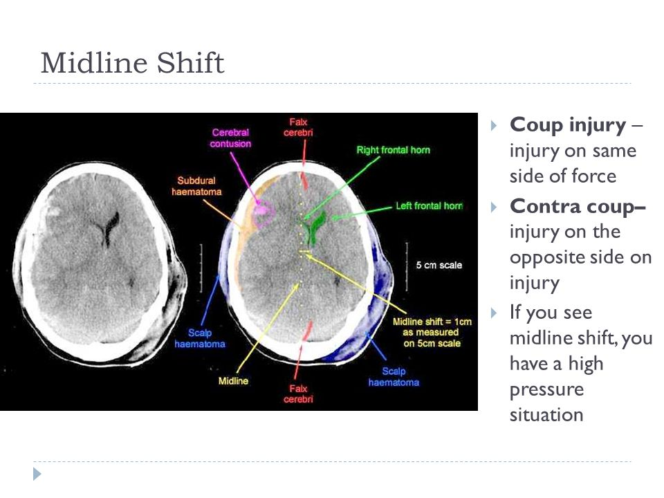 Midline Shift  Coup injury – injury on same side of force  Contra coup– injury on the opposite side on injury  If you see midline shift, you have a high pressure situation
