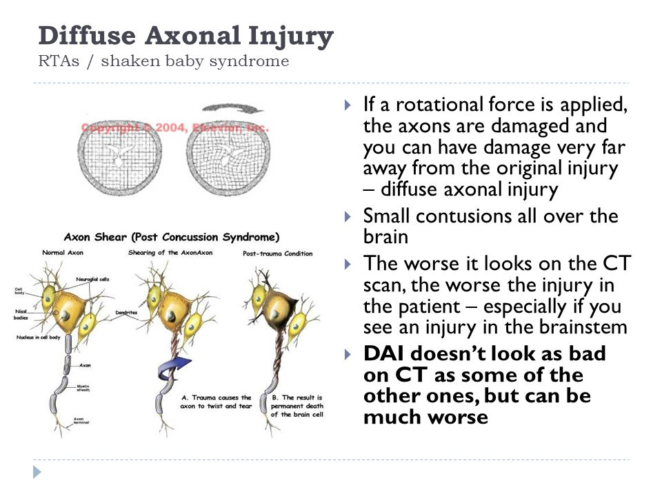 Diffuse Axonal Injury RTAs / shaken baby syndrome  If a rotational force is applied, the axons are damaged and you can have damage very far away from the original injury – diffuse axonal injury  Small contusions all over the brain  The worse it looks on the CT scan, the worse the injury in the patient – especially if you see an injury in the brainstem  DAI doesn't look as bad on CT as some of the other ones, but can be much worse