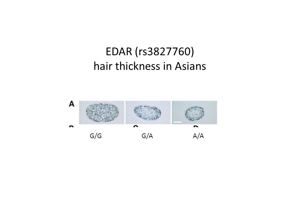 EDAR (rs3827760) hair thickness in Asians G/G G/A A/A