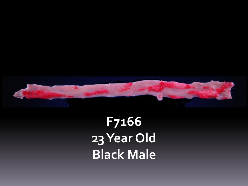 F7166 23 Year Old Black Male