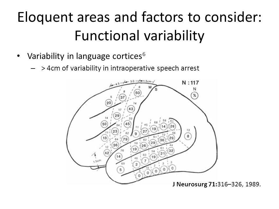 Eloquent areas and factors to consider: Functional variability Variability in language cortices 6 – > 4cm of variability in intraoperative speech arrest J Neurosurg 71:316–326, 1989.