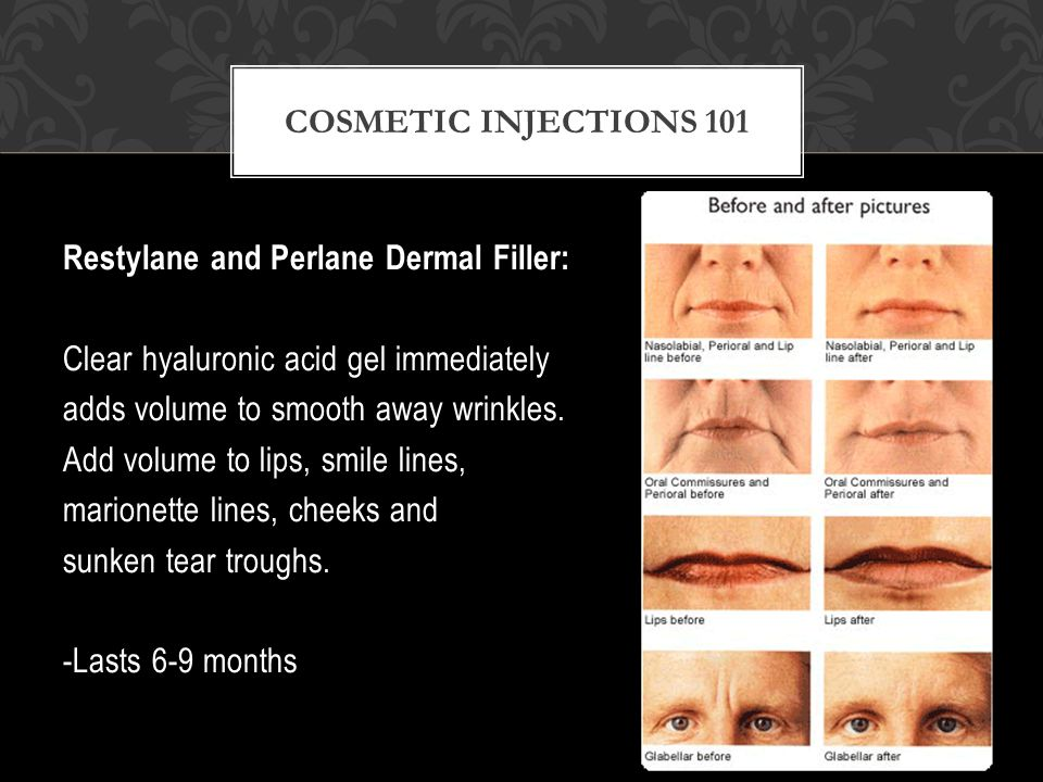 Restylane and Perlane Dermal Filler: Clear hyaluronic acid gel immediately adds volume to smooth away wrinkles.