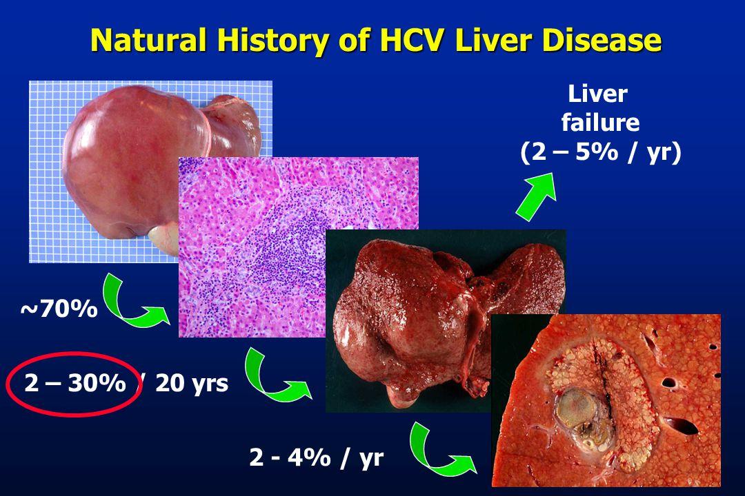 Natural History of HCV Liver Disease ~70%2 – 30% / 20 yrs2 - 4% / yr Liver failure (2 – 5% / yr)