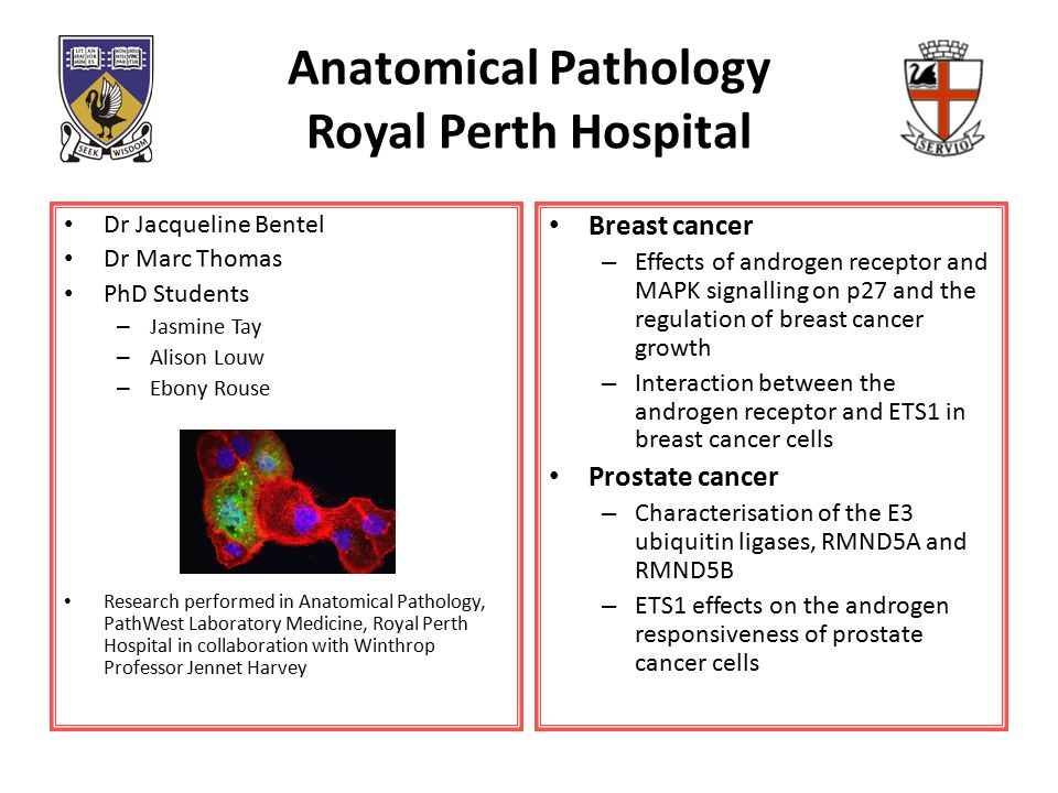 Anatomical Pathology Royal Perth Hospital Dr Jacqueline Bentel Dr Marc Thomas PhD Students – Jasmine Tay – Alison Louw – Ebony Rouse Research performed in Anatomical Pathology, PathWest Laboratory Medicine, Royal Perth Hospital in collaboration with Winthrop Professor Jennet Harvey Breast cancer – Effects of androgen receptor and MAPK signalling on p27 and the regulation of breast cancer growth – Interaction between the androgen receptor and ETS1 in breast cancer cells Prostate cancer – Characterisation of the E3 ubiquitin ligases, RMND5A and RMND5B – ETS1 effects on the androgen responsiveness of prostate cancer cells