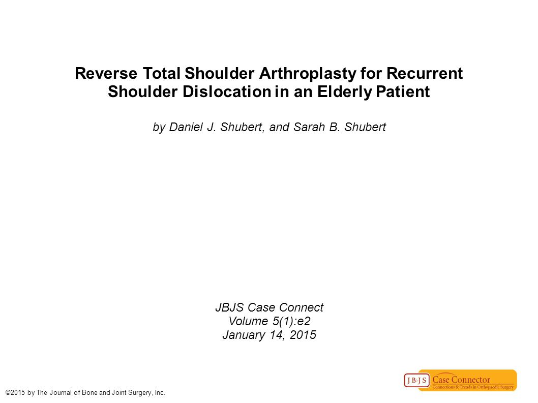 Reverse Total Shoulder Arthroplasty for Recurrent Shoulder Dislocation in an Elderly Patient by Daniel J.