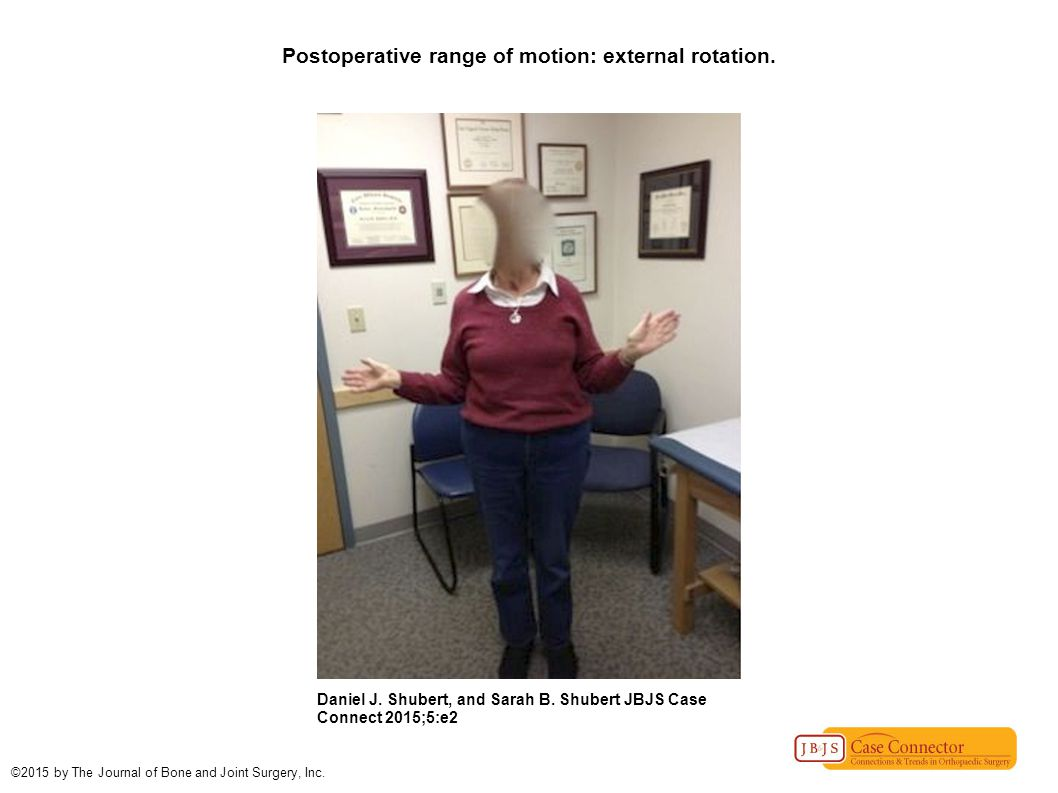Postoperative range of motion: external rotation. Daniel J.
