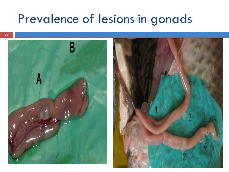 Prevalence of lesions in gonads 27