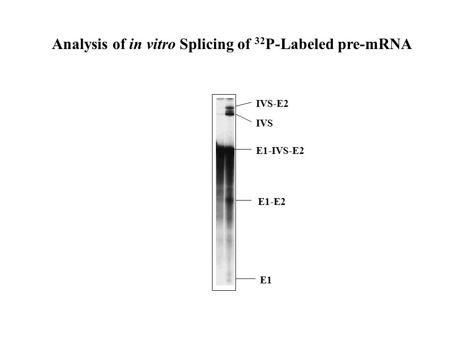 IVS-E2 IVS E1-IVS-E2 E1-E2 E1 Analysis of in vitro Splicing of 32 P-Labeled pre-mRNA