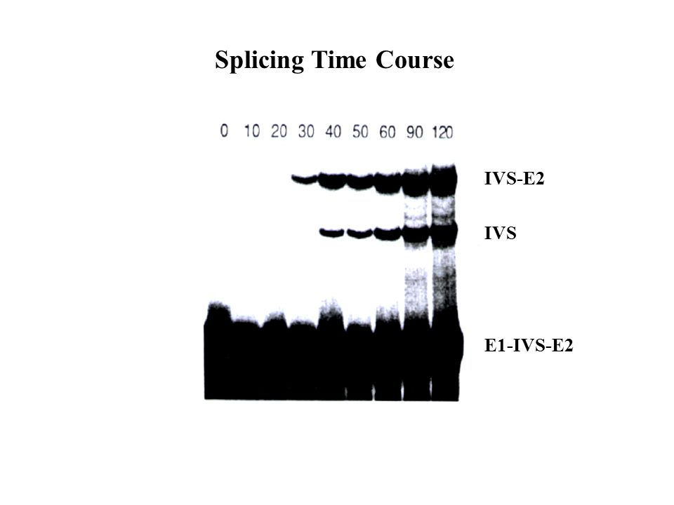 Splicing Time Course IVS-E2 IVS E1-IVS-E2