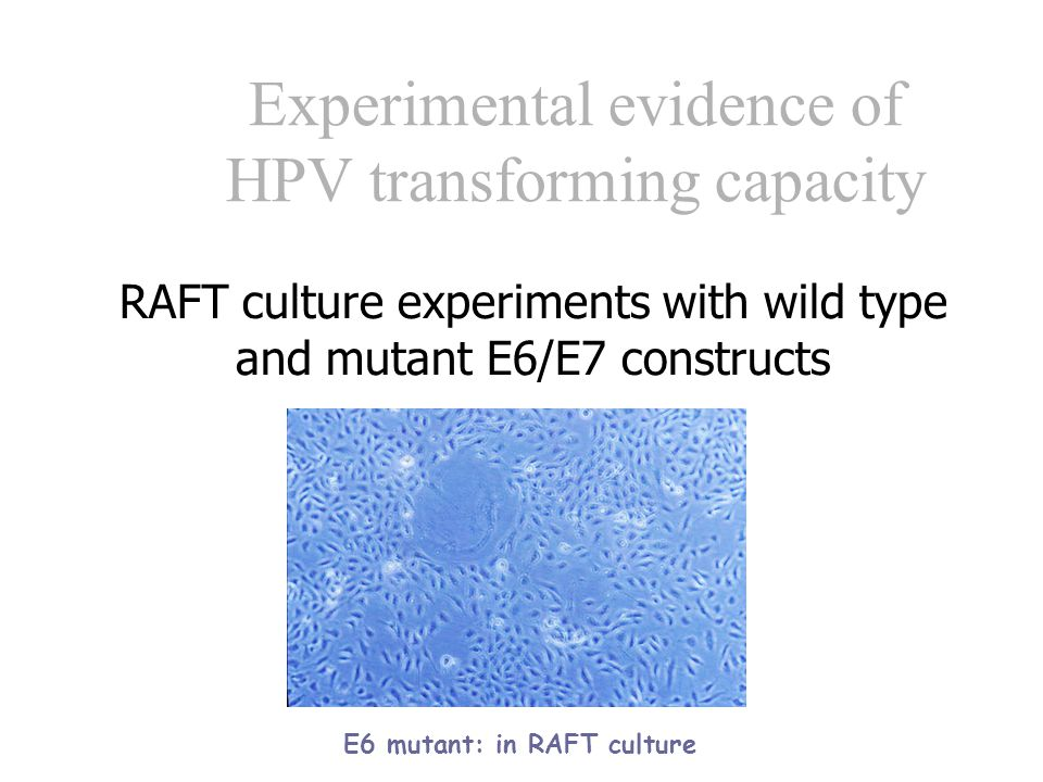 HPV Cells infected with oncogenic HPV types Immortalisation Uncontrolled cell proliferation