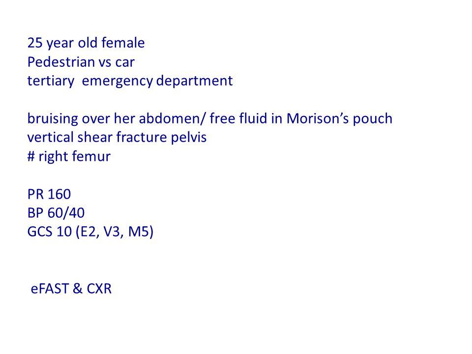 25 year old female Pedestrian vs car tertiary emergency department bruising over her abdomen/ free fluid in Morison's pouch vertical shear fracture pelvis # right femur PR 160 BP 60/40 GCS 10 (E2, V3, M5) eFAST & CXR