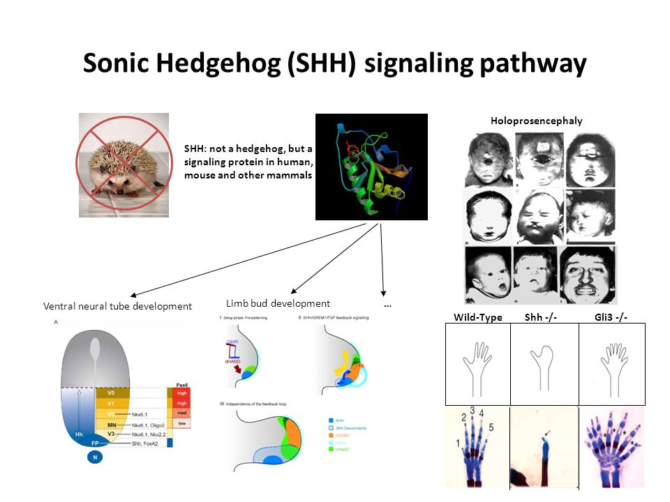 Sonic Hedgehog (SHH) signaling pathway SHH: not a hedgehog, but a signaling protein in human, mouse and other mammals Ventral neural tube development Limb bud development… Wild-TypeShh -/-Gli3 -/- Holoprosencephaly