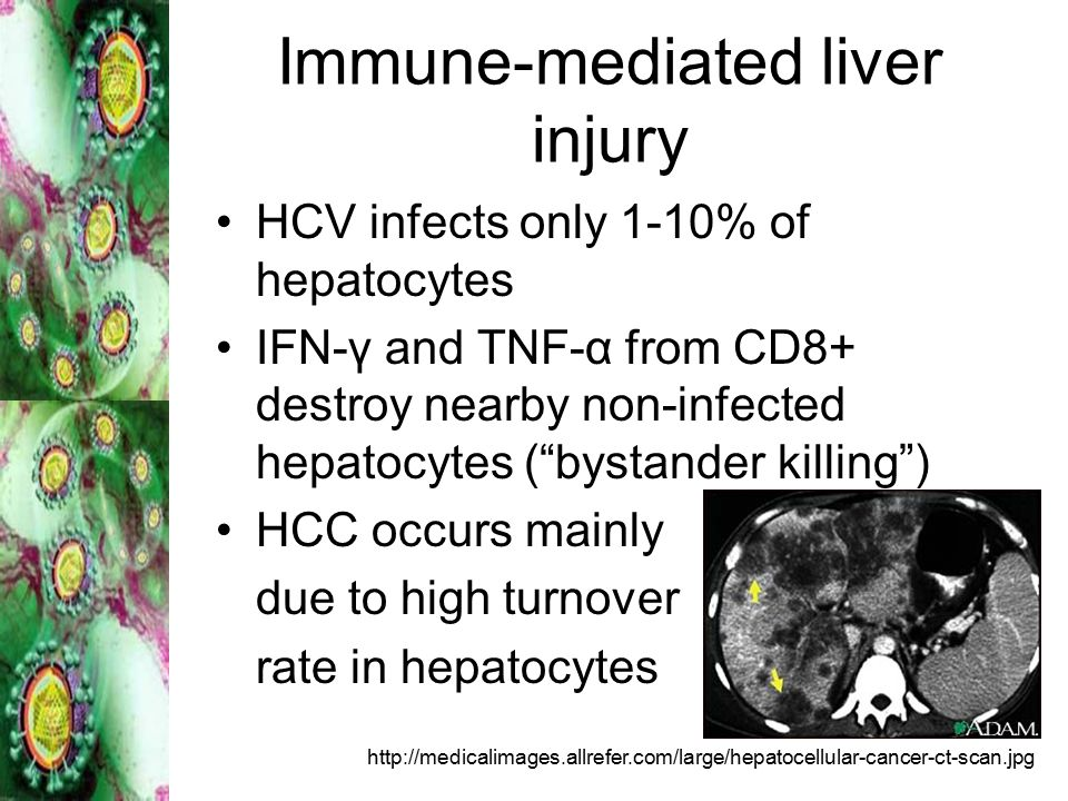 Immune-mediated liver injury HCV infects only 1-10% of hepatocytes IFN-γ and TNF-α from CD8+ destroy nearby non-infected hepatocytes ( bystander killing ) HCC occurs mainly due to high turnover rate in hepatocytes http://medicalimages.allrefer.com/large/hepatocellular-cancer-ct-scan.jpg