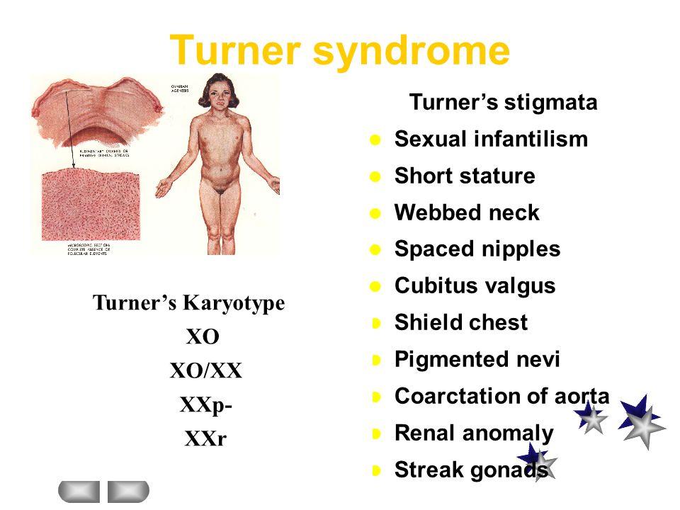  Hypergonadotropic hypogonadism:  Unresponsive end organs  Differential diagnosis: Turner's syndrome Swyer's syndrome Pure gonadal agenesis (46XX &