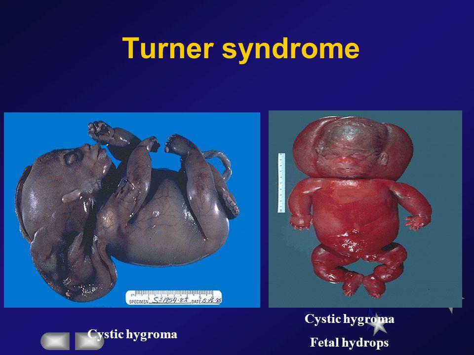 Turner syndrome Turner's stigmata Sexual infantilism Short stature Webbed neck Spaced nipples Cubitus valgus Shield chest Pigmented nevi Coarctation o