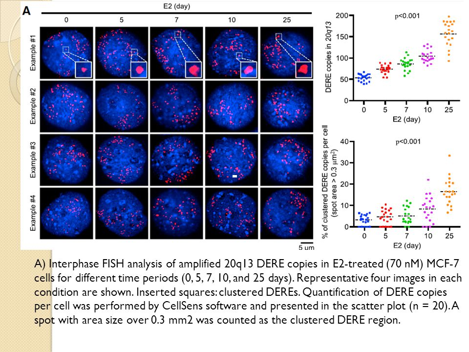 A) Interphase FISH analysis of amplified 20q13 DERE copies in E2-treated (70 nM) MCF-7 cells for different time periods (0, 5, 7, 10, and 25 days).