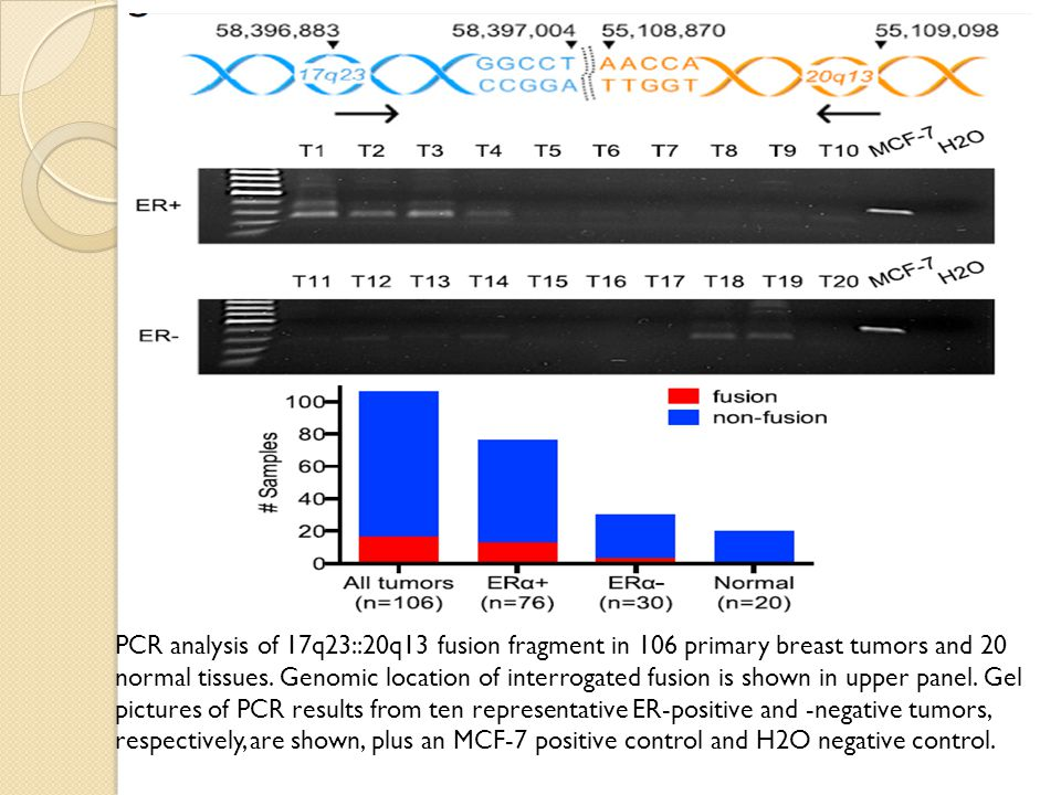 PCR analysis of 17q23::20q13 fusion fragment in 106 primary breast tumors and 20 normal tissues.