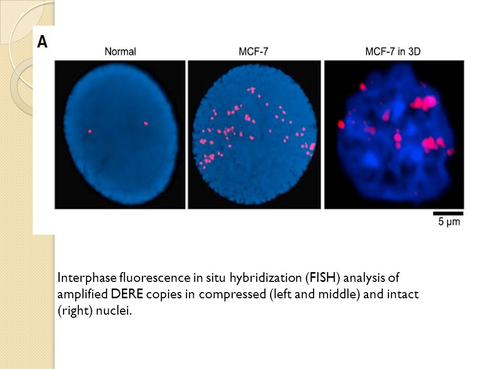 Interphase fluorescence in situ hybridization (FISH) analysis of amplified DERE copies in compressed (left and middle) and intact (right) nuclei.