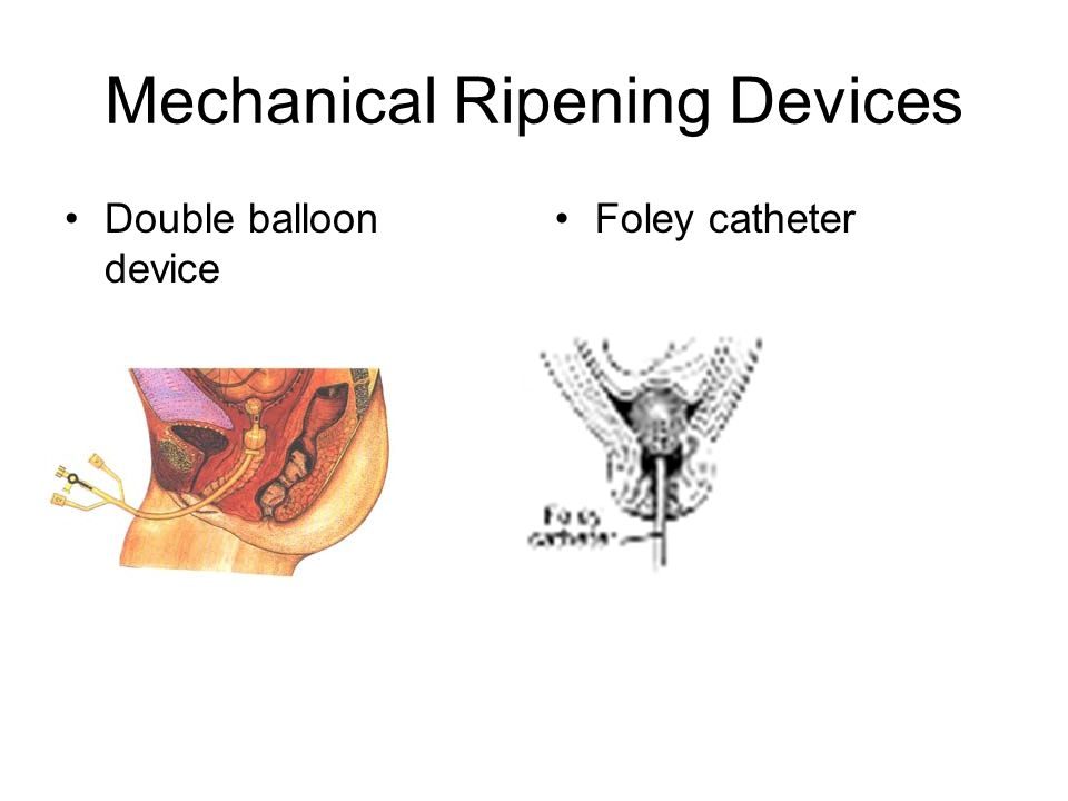 Mechanical Ripening Devices Double balloon device Foley catheter