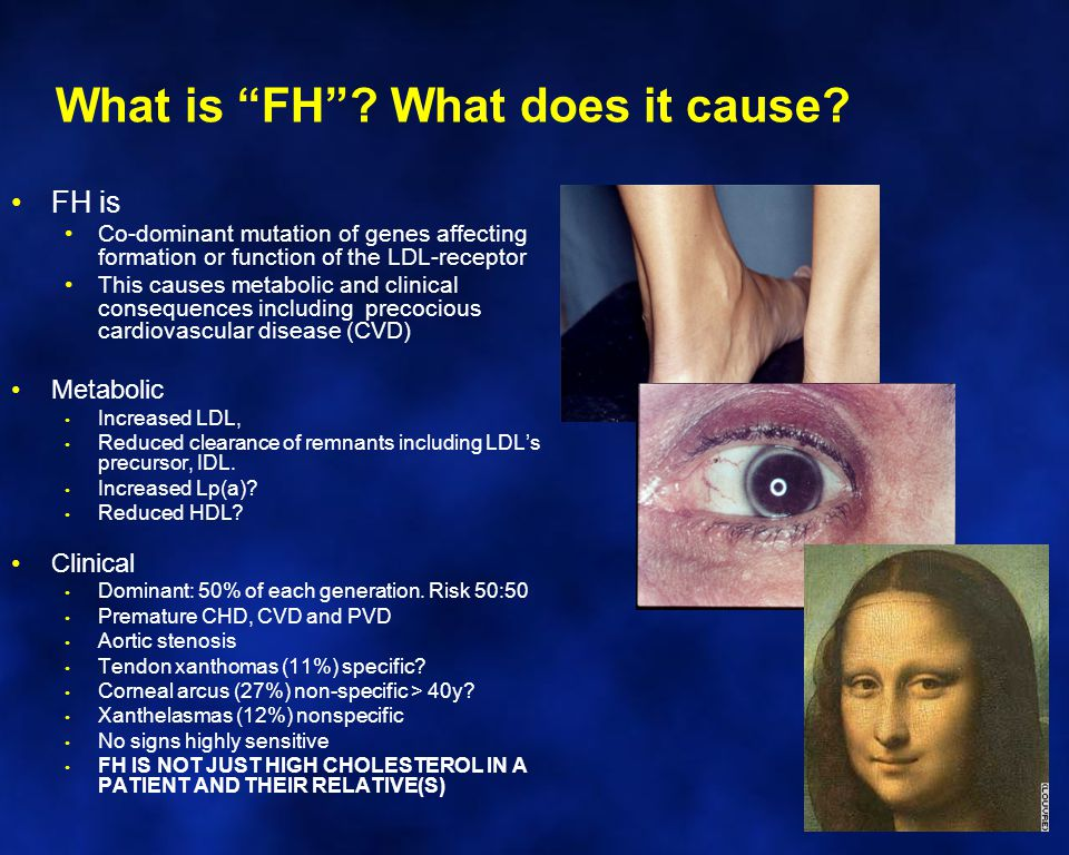 FH: Why is it important.