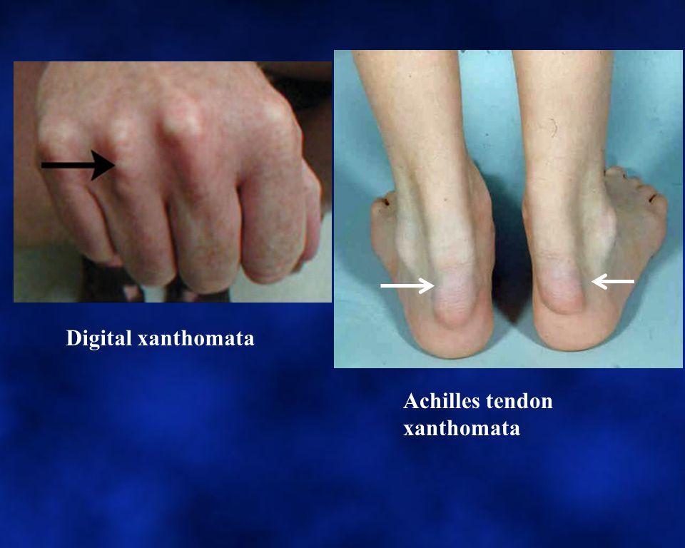 Tendon Xanthoma Achilles tendon xanthomata