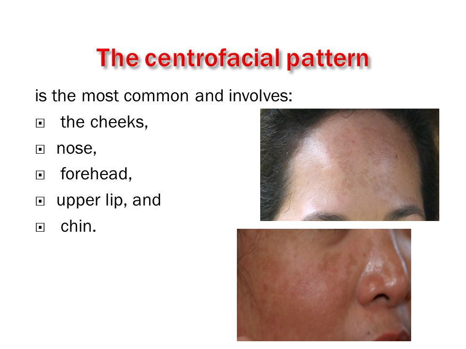 is the most common and involves:  the cheeks,  nose,  forehead,  upper lip, and  chin.