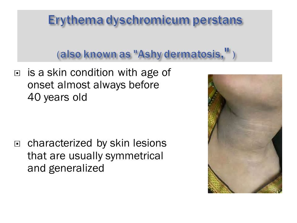  is a skin condition with age of onset almost always before 40 years old  characterized by skin lesions that are usually symmetrical and generalized