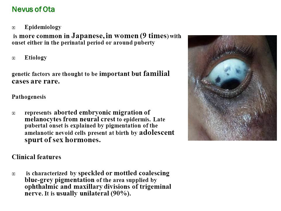 Nevus of Ota  Epidemiology is more common in Japanese, in women (9 times ) with onset either in the perinatal period or around puberty  Etiology genetic factors are thought to be important but familial cases are rare.