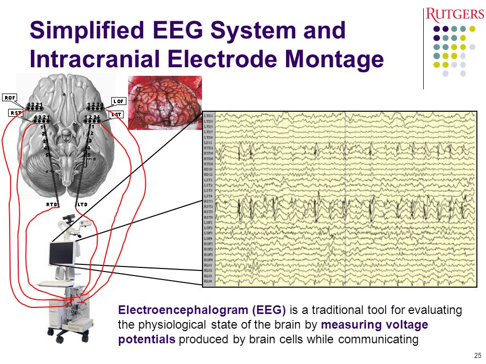 Simplified EEG System and Intracranial Electrode Montage Electroencephalogram (EEG) is a traditional tool for evaluating the physiological state of the brain by measuring voltage potentials produced by brain cells while communicating 25