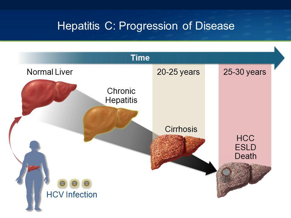 Hepatitis C: Progression of Disease 25-30 years Normal Liver Chronic Hepatitis HCC ESLD Death HCV Infection 20-25 years Cirrhosis Time