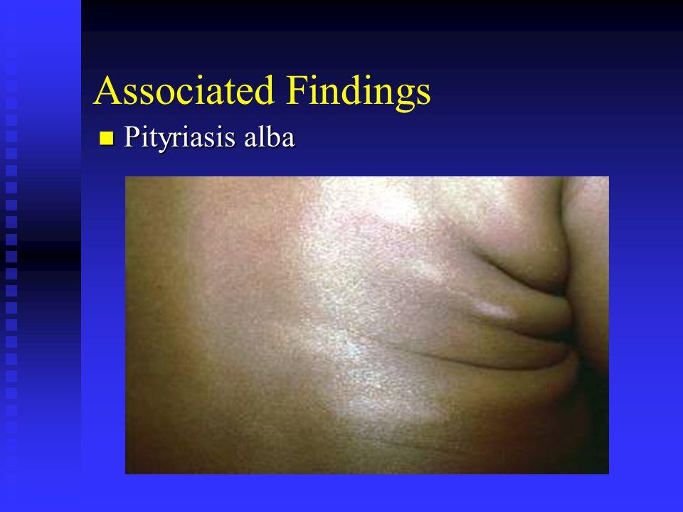 Associated Findings Pityriasis alba Pityriasis alba