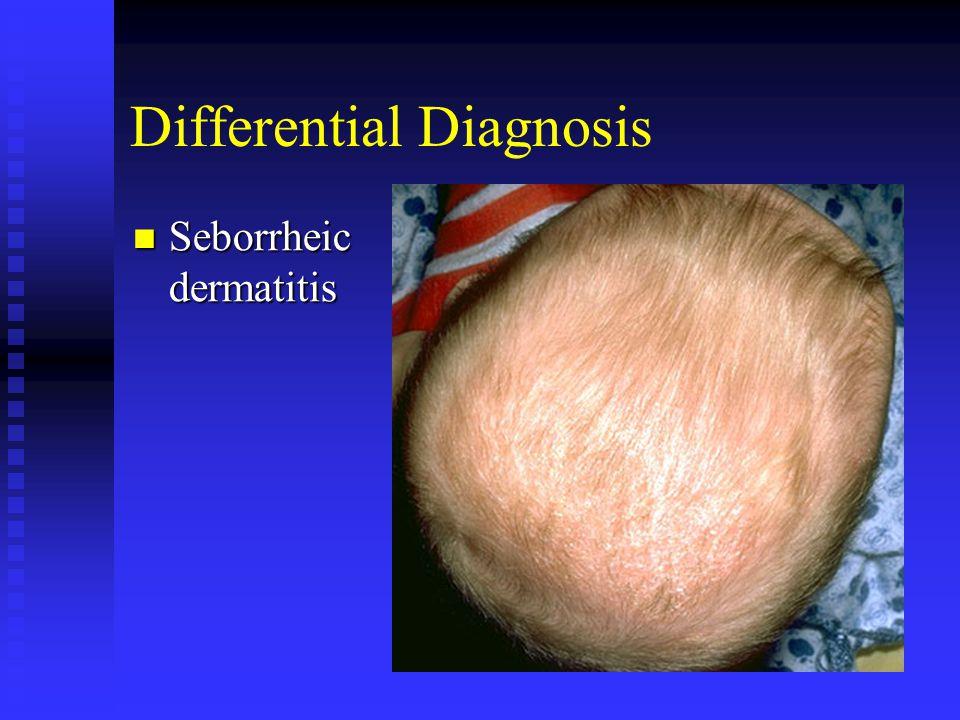 Differential Diagnosis Seborrheic dermatitis Seborrheic dermatitis