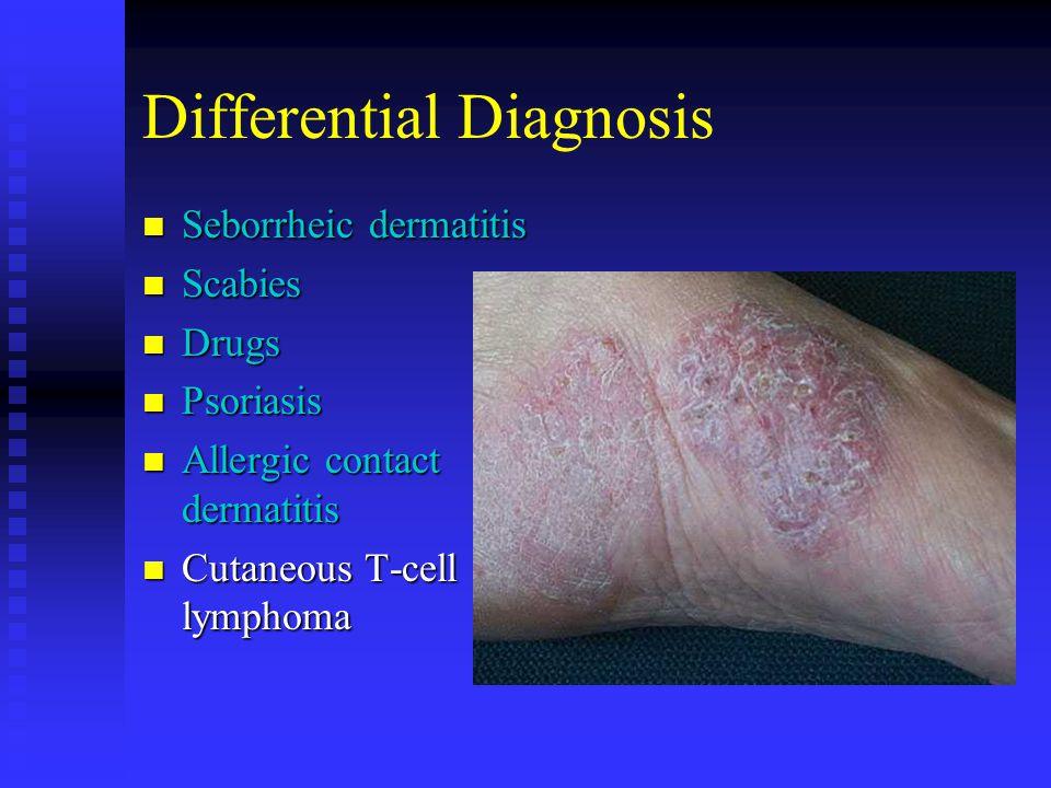 Differential Diagnosis Seborrheic dermatitis Seborrheic dermatitis Scabies Scabies Drugs Drugs Psoriasis Psoriasis Allergic contact dermatitis Allergi