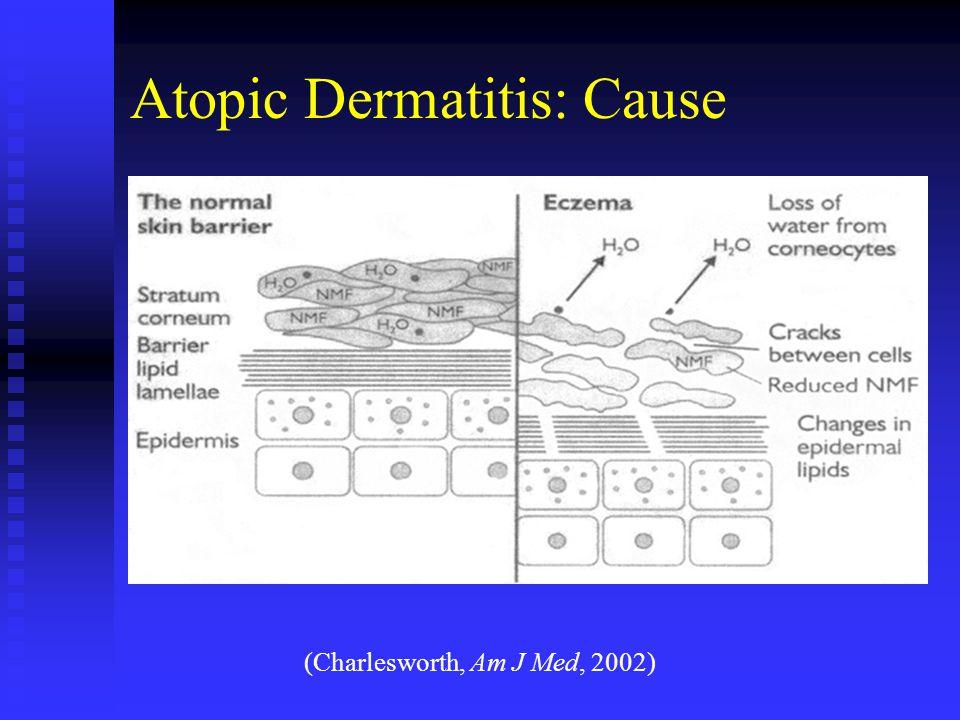 Atopic Dermatitis: Cause (Charlesworth, Am J Med, 2002)