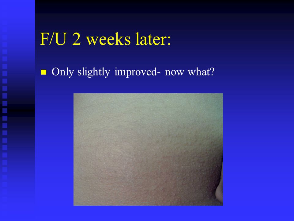 F/U 2 weeks later: Only slightly improved- now what?