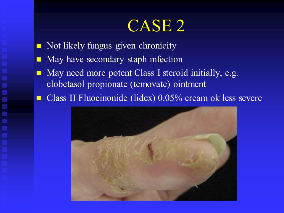 CASE 2 Not likely fungus given chronicity May have secondary staph infection May need more potent Class I steroid initially, e.g. clobetasol propionat
