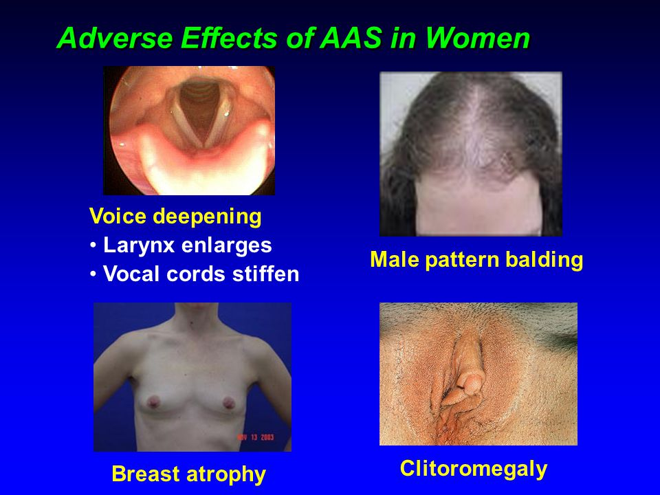 Voice deepening Larynx enlarges Vocal cords stiffen Adverse Effects of AAS in Women Clitoromegaly Male pattern balding Breast atrophy