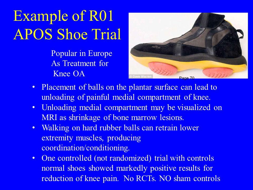 Example of R01 APOS Shoe Trial Popular in Europe As Treatment for Knee OA Placement of balls on the plantar surface can lead to unloading of painful medial compartment of knee.