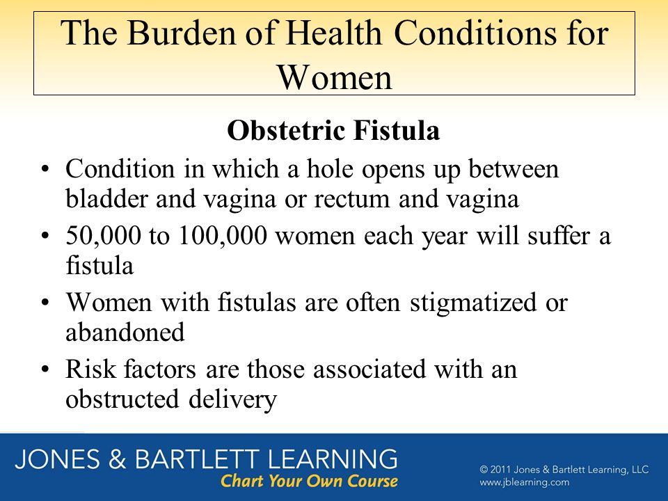 The Burden of Health Conditions for Women Obstetric Fistula Condition in which a hole opens up between bladder and vagina or rectum and vagina 50,000